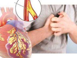 Dấu hiệu bệnh tim mạch không thể bỏ qua