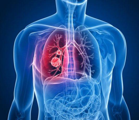 8 dấu hiệu đầu tiên của ung thư phổi